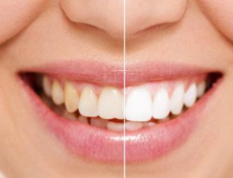 Studio Cristaldent per impianti e estetica dentale