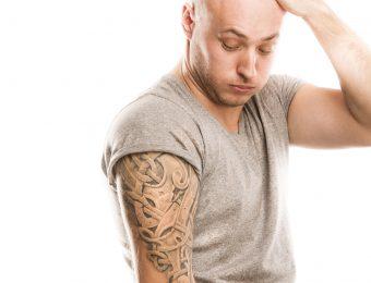Tecniche rimozione tatuaggi