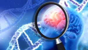 alzheimer-ricerca-cervello